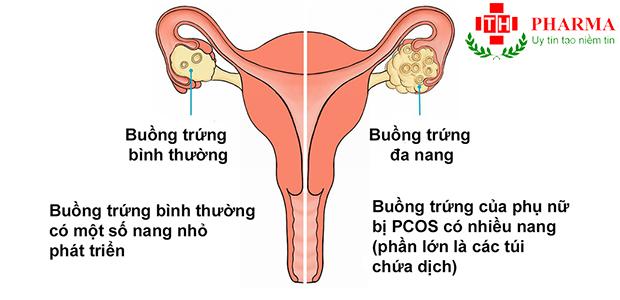 Buồng trứng đa nang PCOS